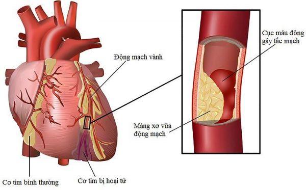 """nam linh chi doi voi he tim mach nhu the nao 600x373 - Nấm linh chi - """"Liệu pháp"""" thần kỳ đối với bệnh tim mạch"""