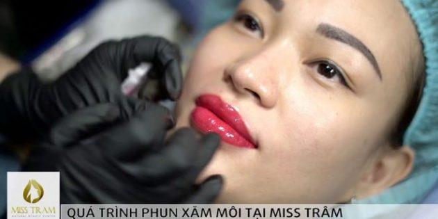 qua trinh phun moi tai miss tram 660x330 630x315 - Top 3 trường hợp cần chỉnh viền môi